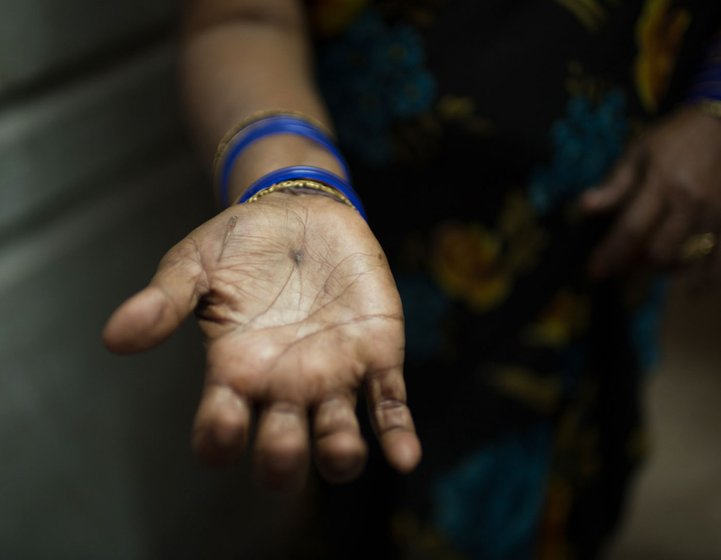 A woman holding out her hand to show the injuries on her palm.