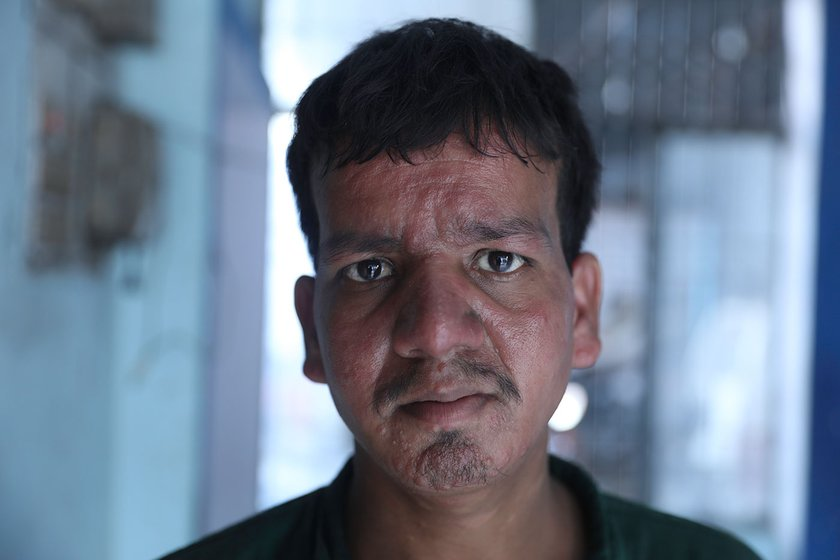 Asmat Ali, 19 has lived with PKDL for 9 years but treatment is not on his list of priorities