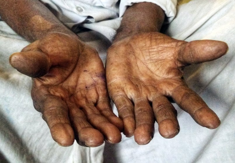An old man's hands