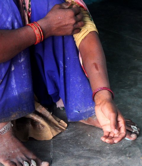 Nageena Khan's bangles broke and pierced the skin recently when her husband hit her. Left: With her younger son
